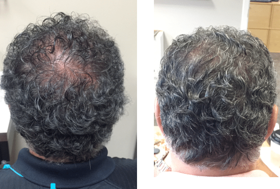 Before/After, Courtesy of Skin Smart Dermatology