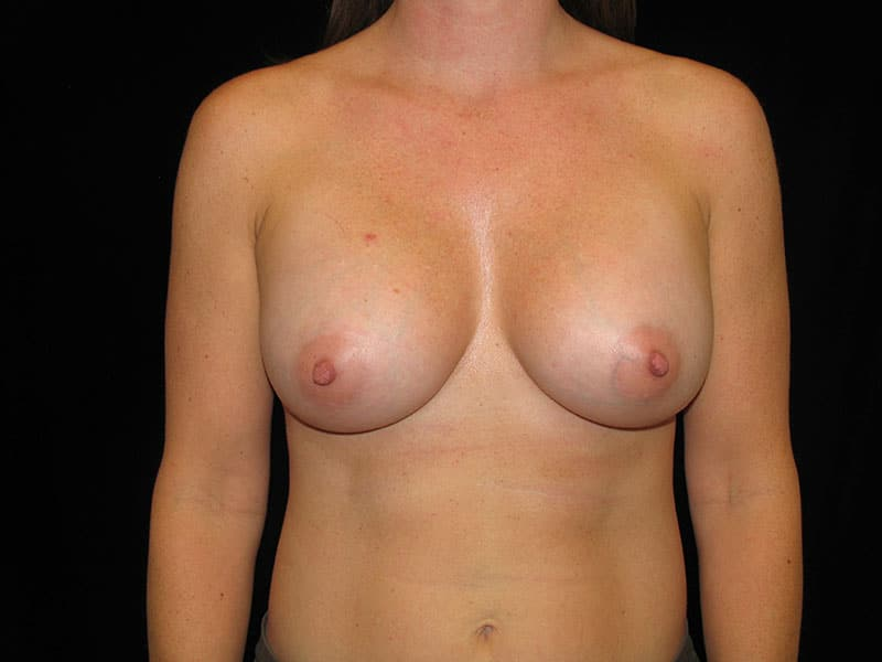 skin irritation after breast augmentation