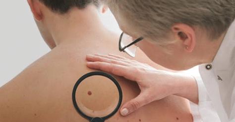 yearly skin exam