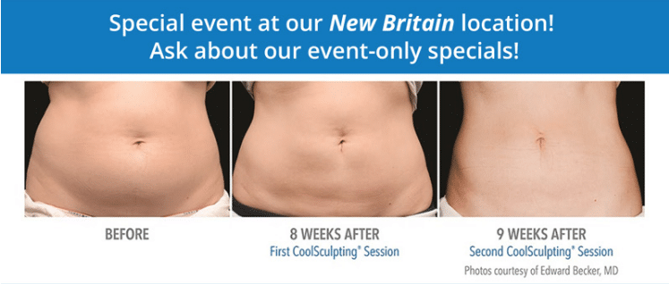 What Is Coolsculpting The World S 1 Fat Reduction Procedure
