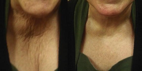 neck microneedling