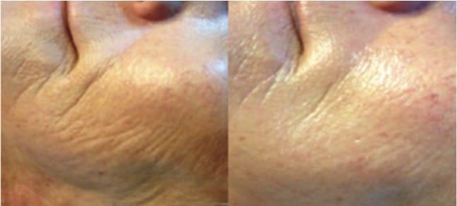 wrinkles microneedling